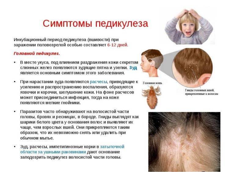 Педикулез (вши) в детском саду: что делать