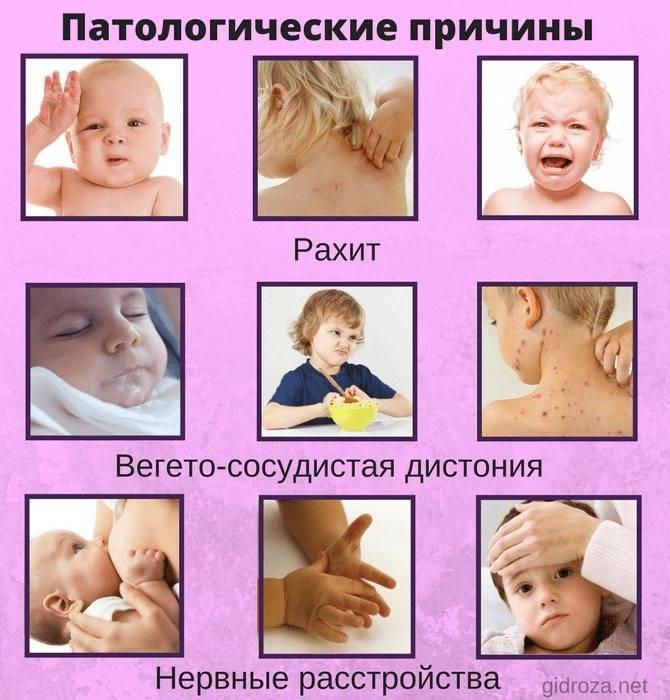 Потеет голова у грудничка во время кормления