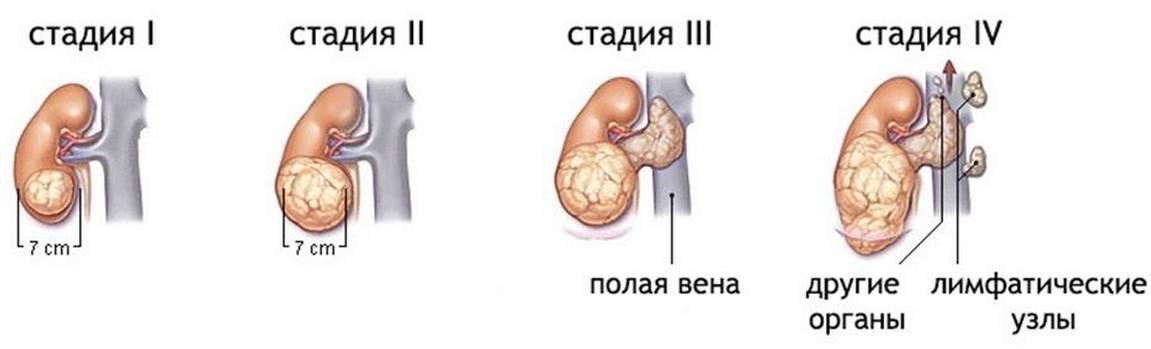 Опухоли почек: первое обследование  — узи