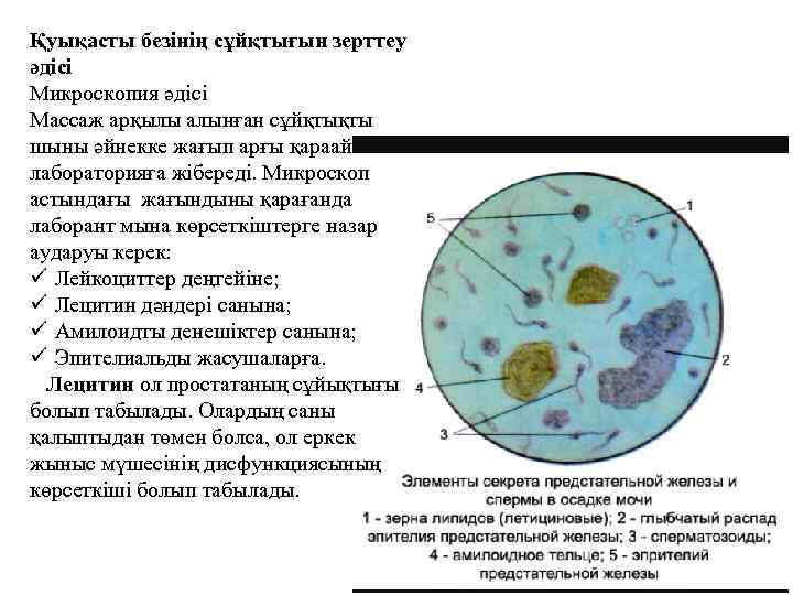 Спермограмма: расшифровка анализа
