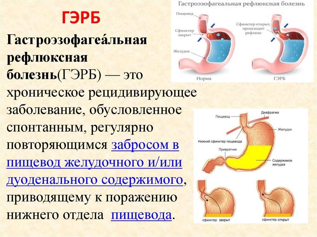 Гастроэзофагеальнорефлюксная (гэрб) болезнь у детей и подростков