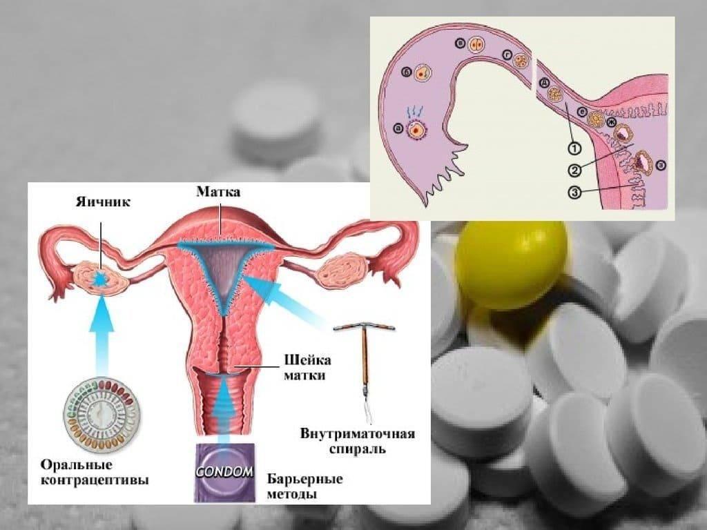 Беременность после противозачаточных таблеток: как быстро можно забеременеть