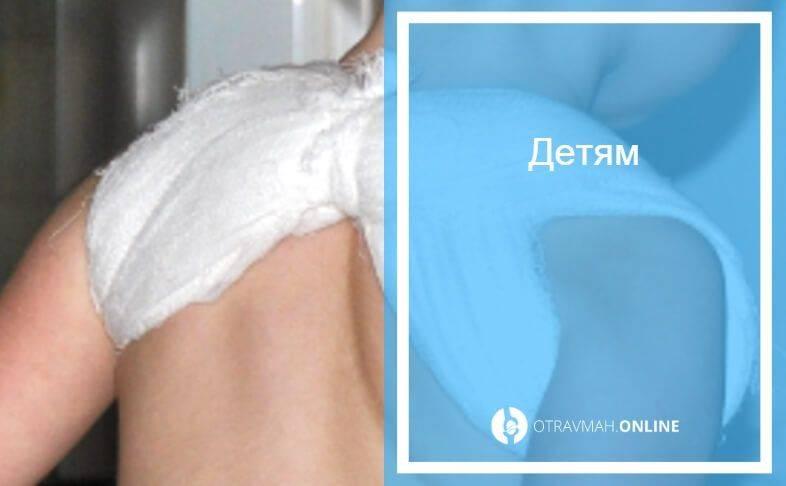 Лечение компрессионного перелома позвоночника у детей в москве в клинике дикуля: цены, запись на прием | центр дикуля
