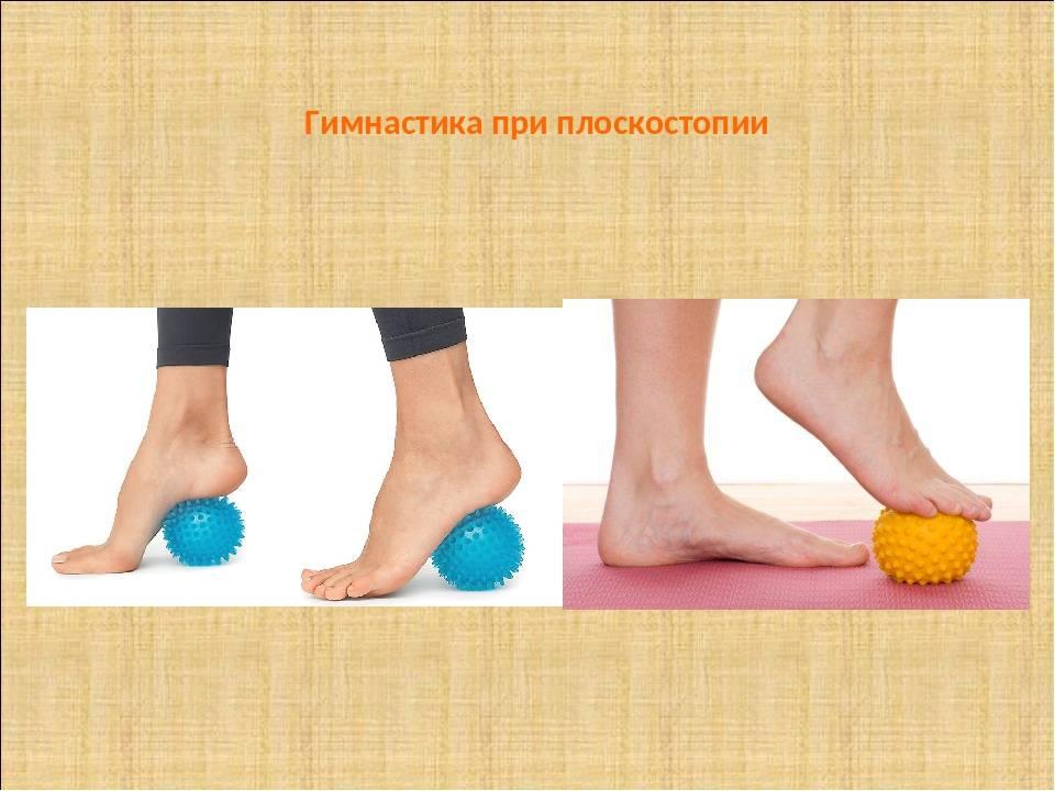 Плоскостопие - причины, симптомы, степени, диагностика. продольное и поперечное плоскостопие. лечение  – массаж, обувь и стельки при плоскостопии, упражнения :: polismed.com