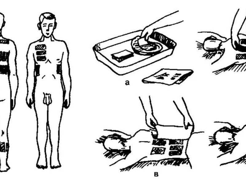 Упражнения при бронхите: дыхательные, по стрельниковой, для отхождения мокроты | компетентно о здоровье на ilive