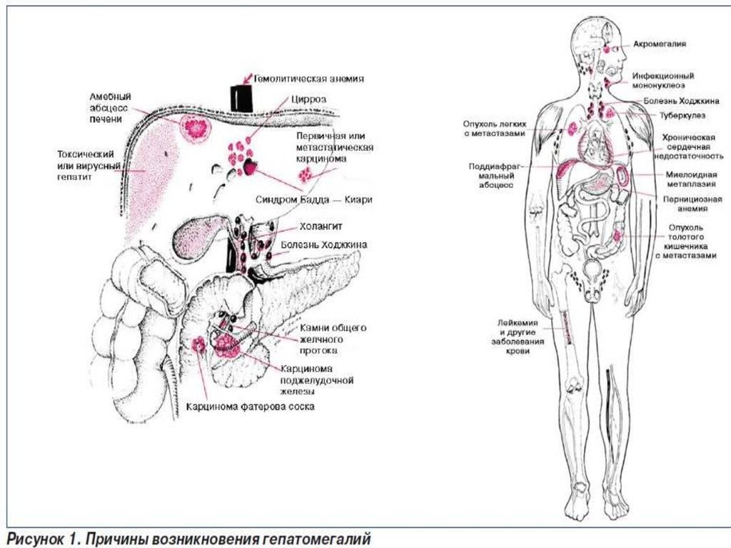 Увеличение печени. симптомы и лечение гепатомегалии печени.!