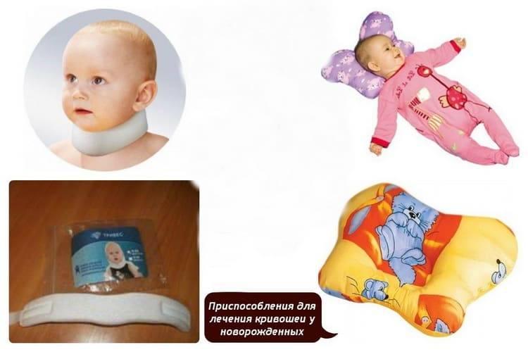Кривошея - причины, признаки, методы лечения. кривошея у новорожденных