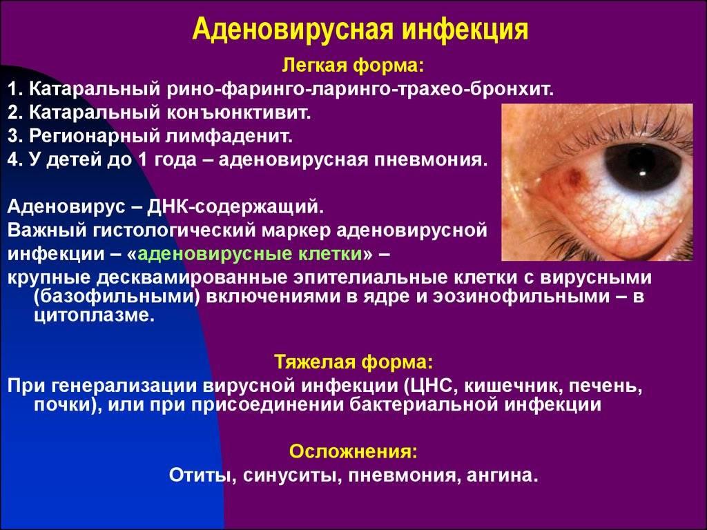 Что такое конъюнктивит: симптомы, причины, виды, лечение и профилактика