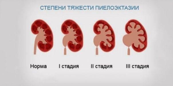 Кистозные заболевания почек