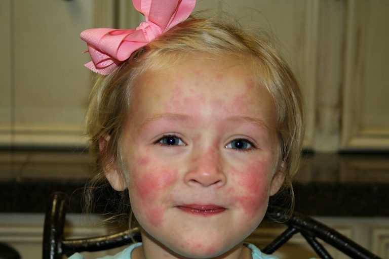 Аллергический кашель. причины, симптомы и лечение аллергического кашля
