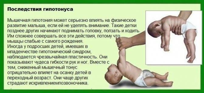 Что делать, если младенцу поставили диагноз «гипертонус мышц»?