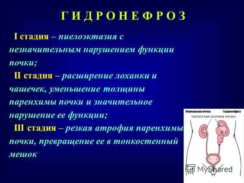 Пиелоэктазия