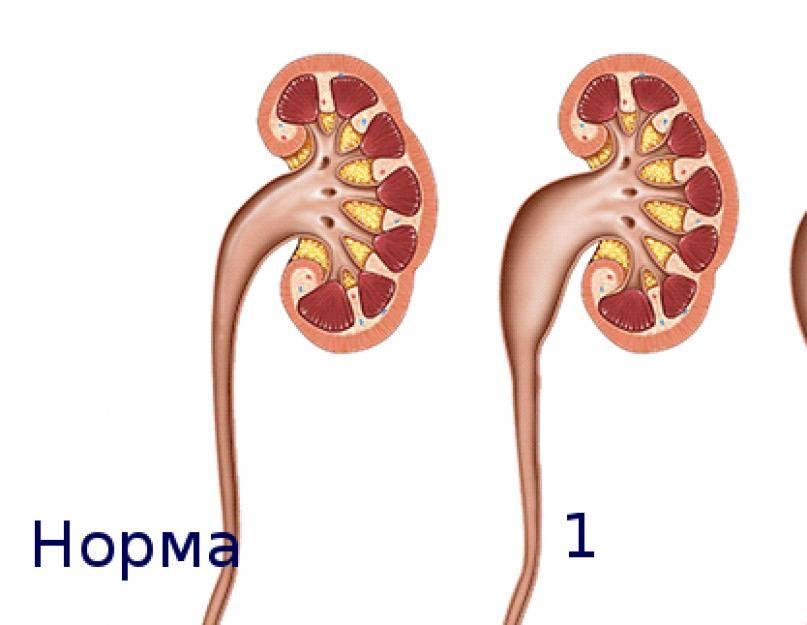 Что вызывает гидронефроз? - medical insider