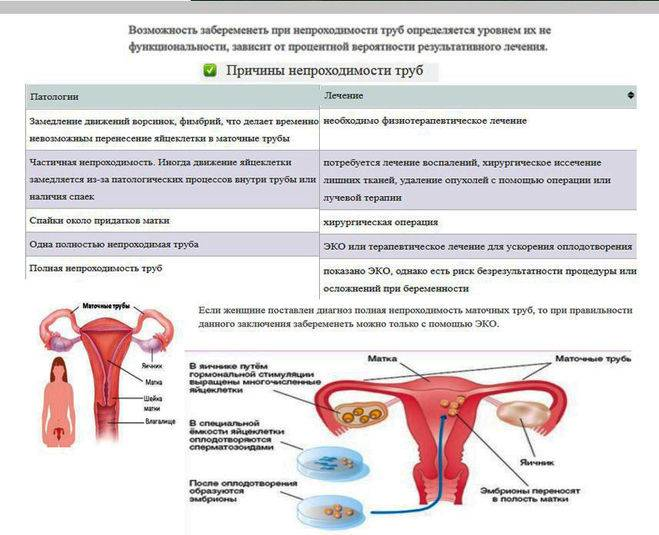 Воспаление придатков матки (сальпингоофорит, аднексит)