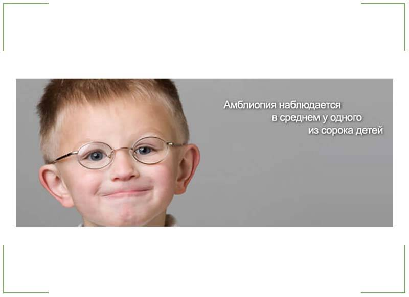 Лечение амблиопии и косоглазия - энциклопедия ochkov.net