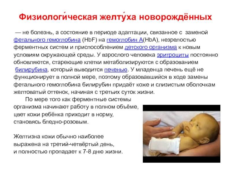 Желтуха у новорожденных - причины и последствия, сколько держится, лечение