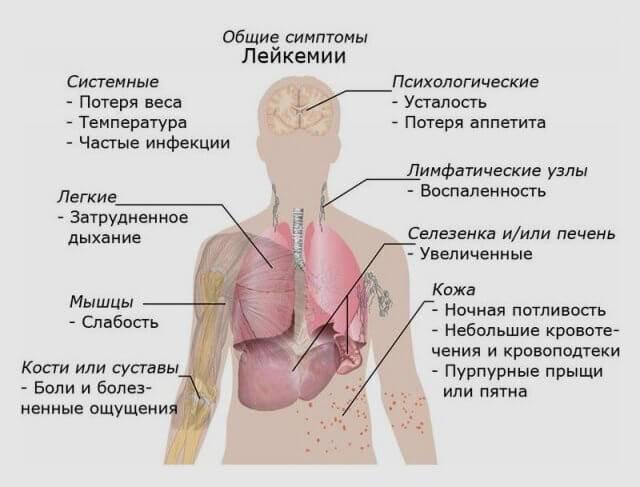 Паллиативная помощь при остром лейкозе