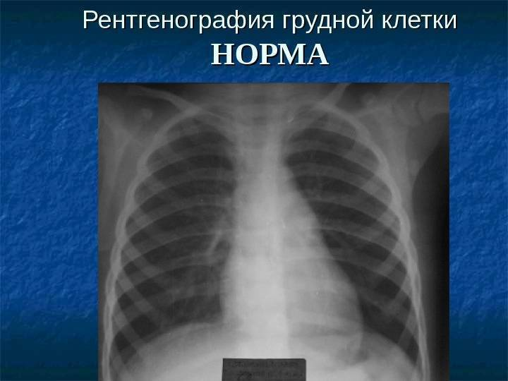 Рентген грудной клетки - цены в москве в клинике семейный доктор