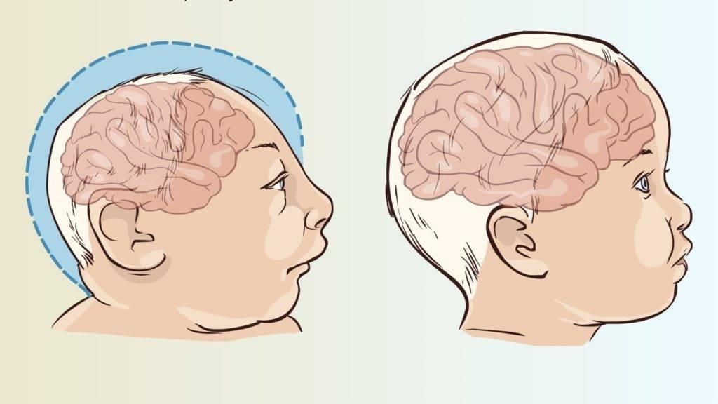 Узи головы новорожденного: особенности проведения процедуры, нормы и патологии