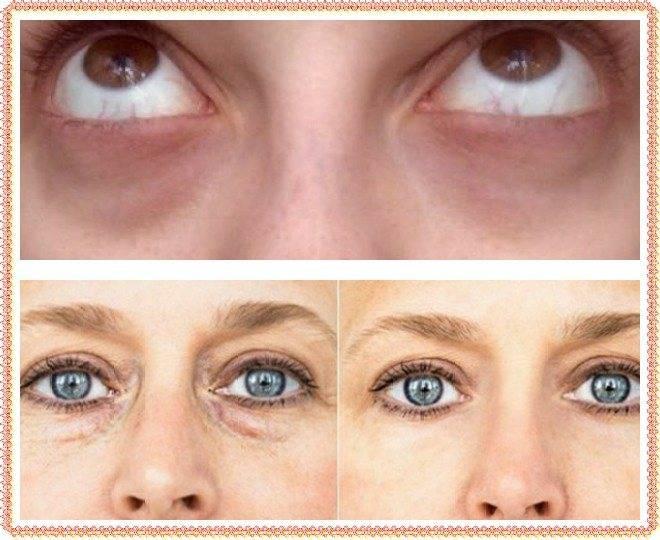 Стадии схождения гематомы под глазом