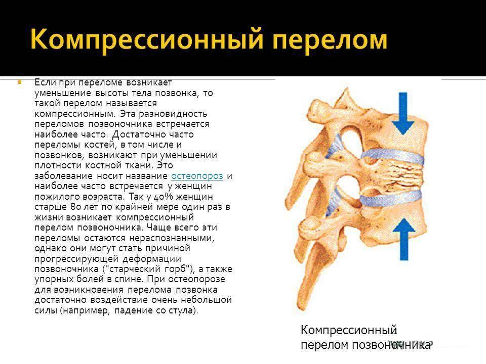 Лечение компрессионного перелома позвоночника в москве в клинике дикуля: цены, запись на прием   центр дикуля