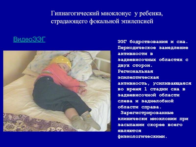 Снохождение у детей: причины и профилактика
