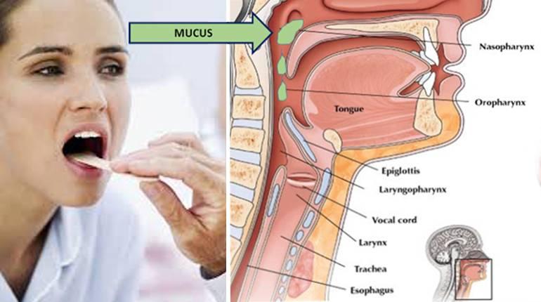 Чем лечить кашель ребенка от соплей по задней стенке горла