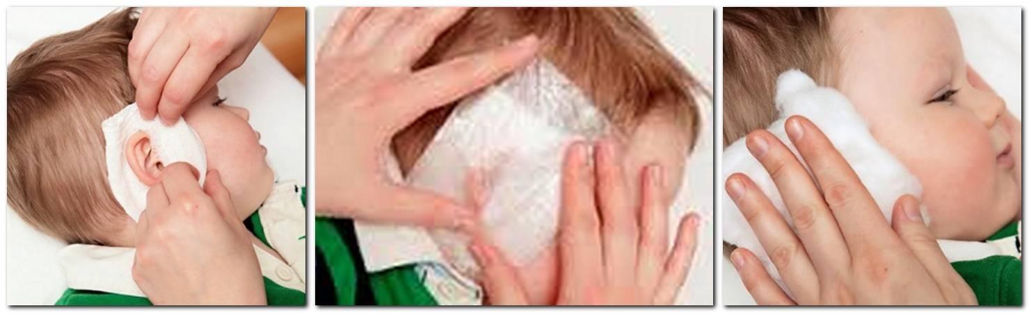 Лечение острого среднего отита у детей
