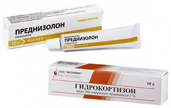 Гормоны против атопического дерматита: да или нет