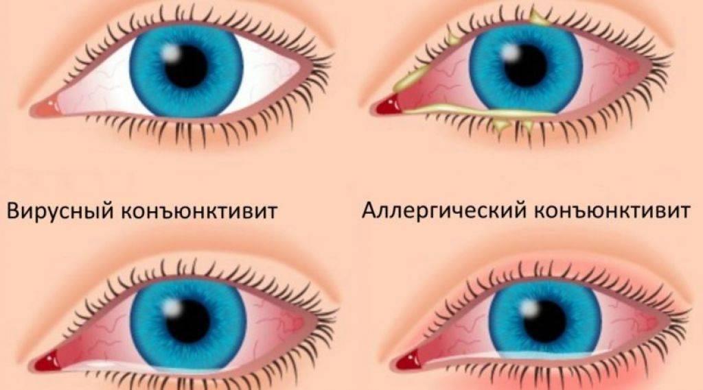 Сколько времени лечится конъюнктивит у детей? - энциклопедия ochkov.net