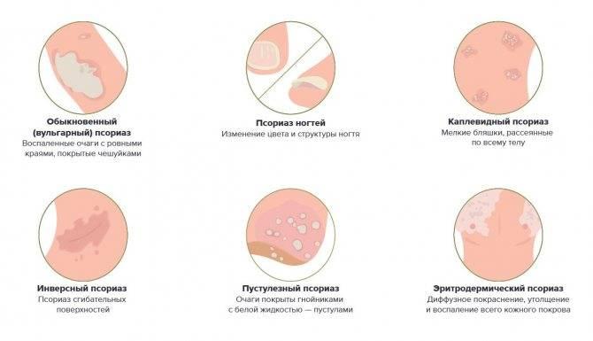 Псориаз у детей - причины, диагностика и лечение