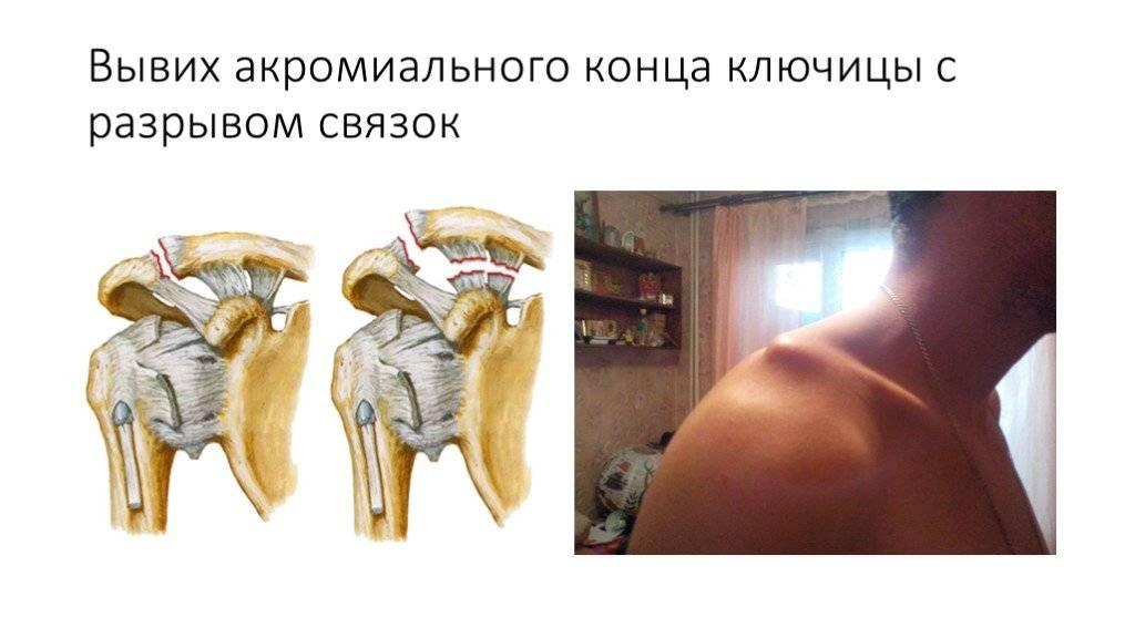 Перелом руки или запястья