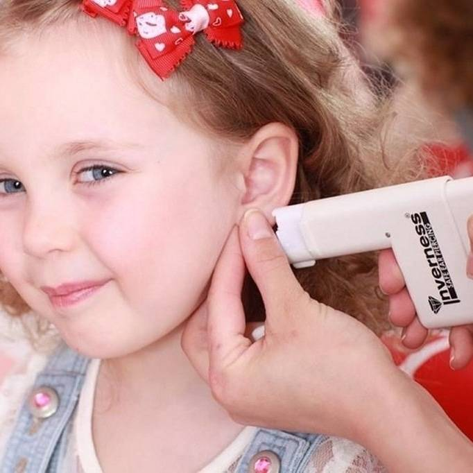 Проколоть уши ребенку: когда лучше это сделать, насколько болезненно прокалывание?