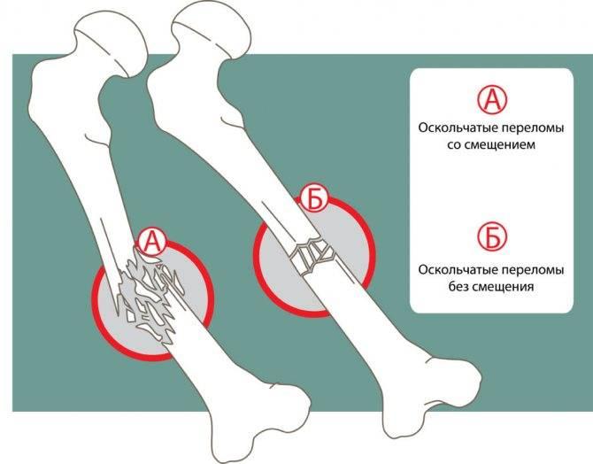 Переломы скуловой кости и скуловой дуги: причины, симптомы, диагностика, лечение