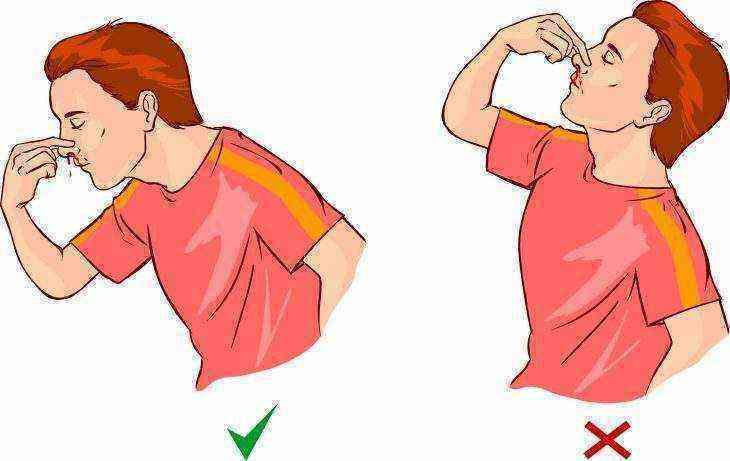 Что делать, если ребенок ударился носом сильно об пол и пошла кровь