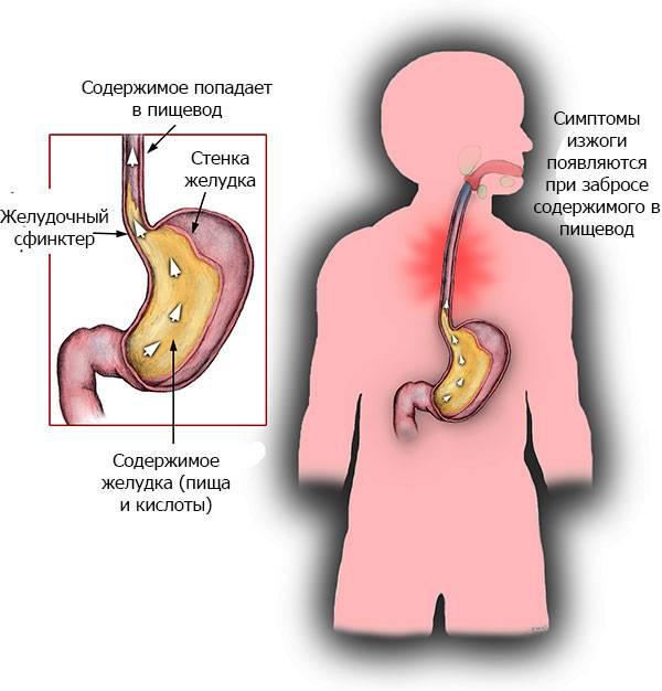 Гастроэзофагеальная рефлюксная болезнь: новый подход к причинам и лечению * клиника диана в санкт-петербурге