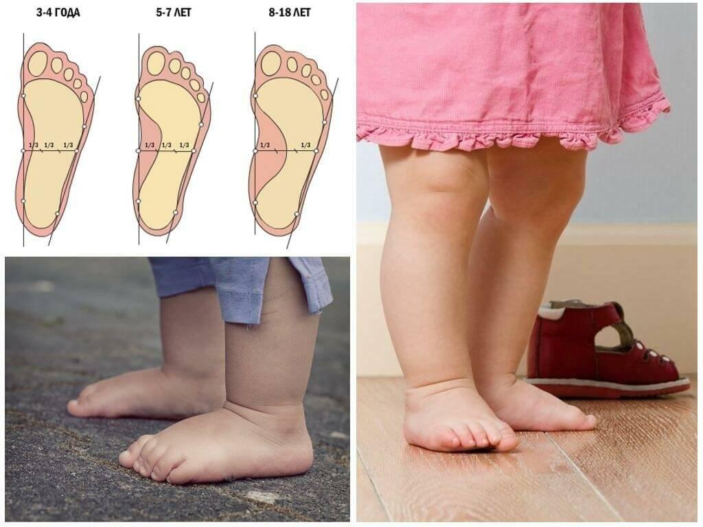 До какого возраста можно вылечить плоскостопие