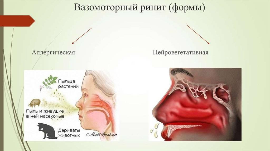 Сезонный ринит, лечение и симптомы сезонного аллергического насморка