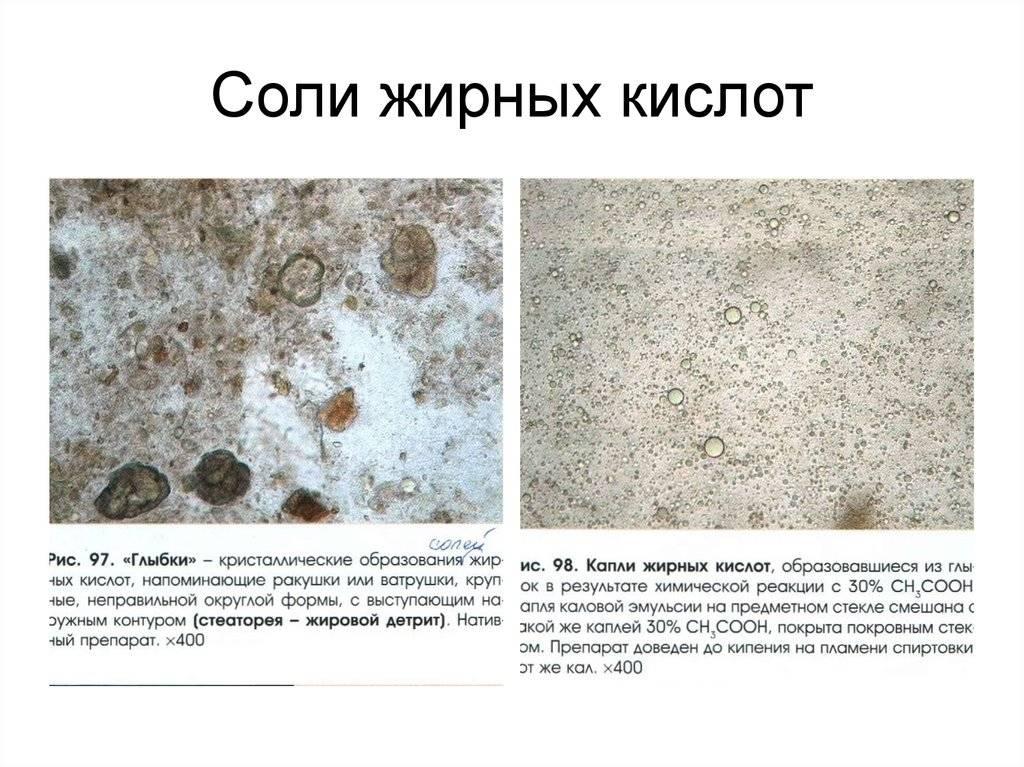 Копрограмма (общий анализ кала) - расшифровка, нормальные значения. как правильно подготовится и собрать материал? :: polismed.com