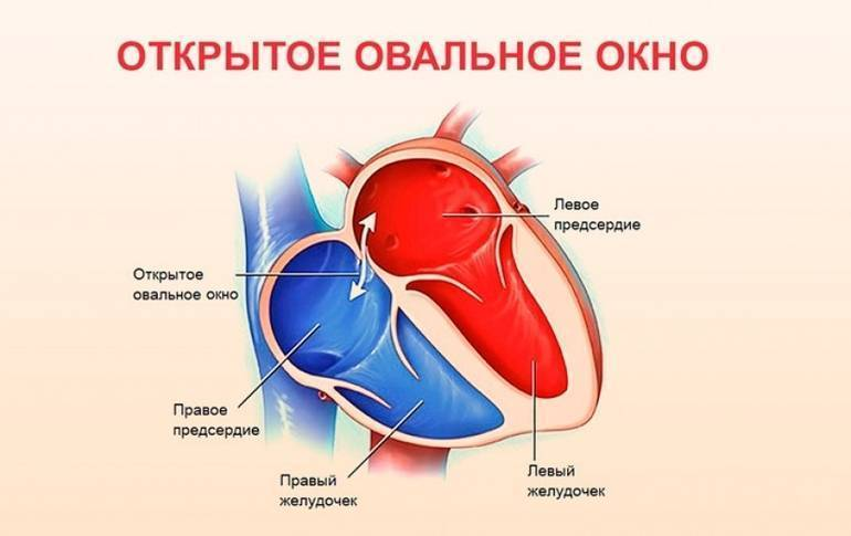 Открытое овальное окно в сердце - диагноз у ребенка, у новорожденного, у взрослых - docdoc.ru