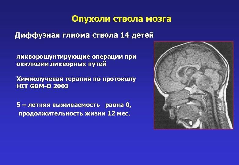 Опухоль головного мозга: симптомы и признаки