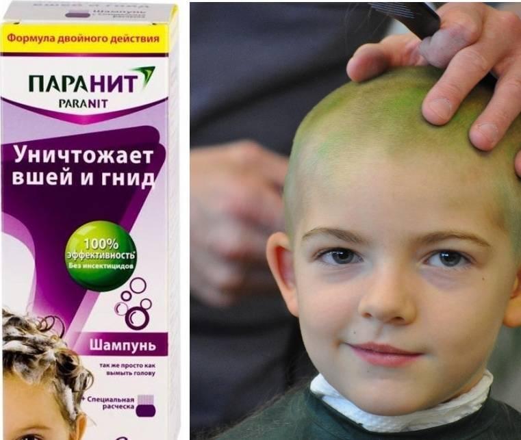 Головные вши у детей: причины, как и чем лечить, профилактика