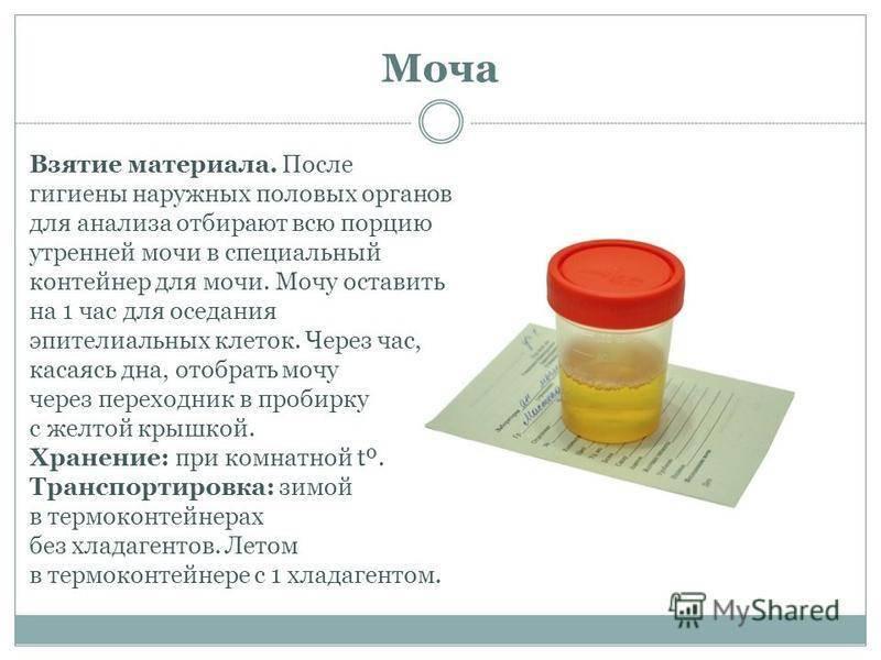Анализ мочи на наркотики: как сдают, что показывает | компетентно о здоровье на ilive