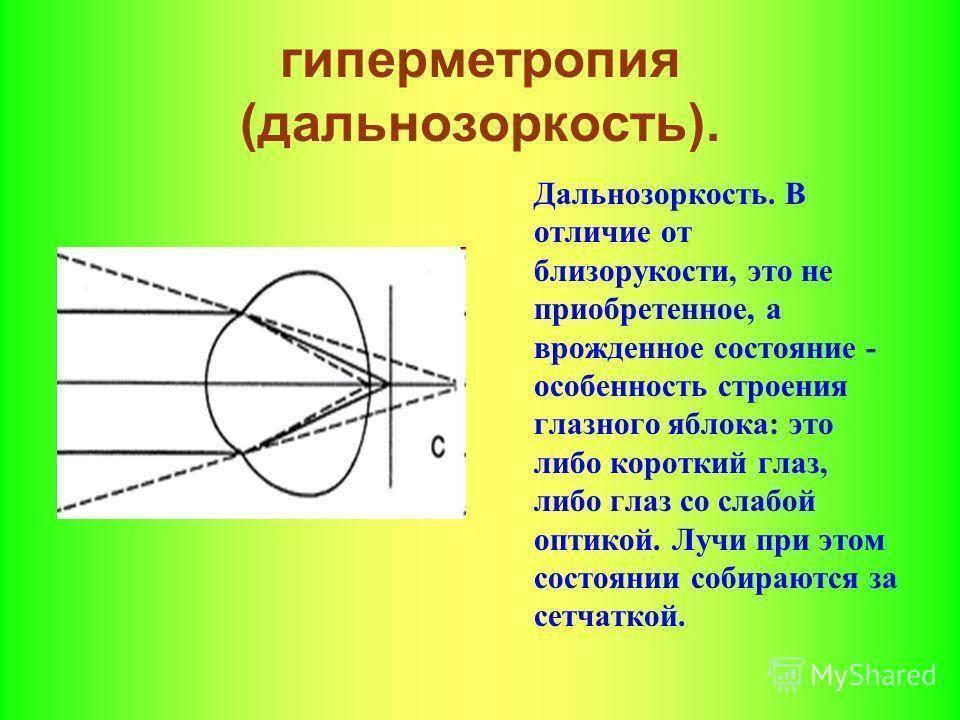 Диагностика дальнозоркости (гиперметропии), портал vseozrenii.
