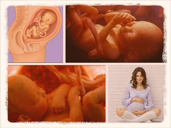 Ребенок икает в утробе матери