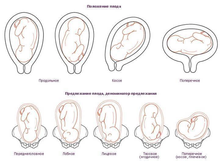 Патологии внутриутробного роста и развития плода
