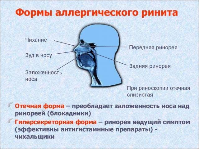 Аллергический ринит как одна из граней поллиноза