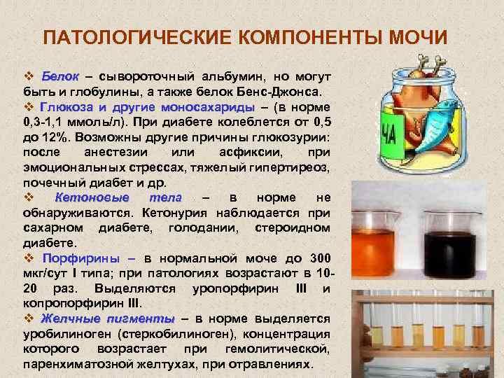 Белок в моче: причины появления белка в моче, консультация уролога в клинике