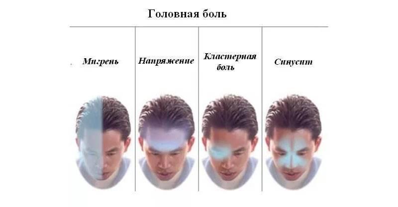 Боль в затылке с левой стороны головы