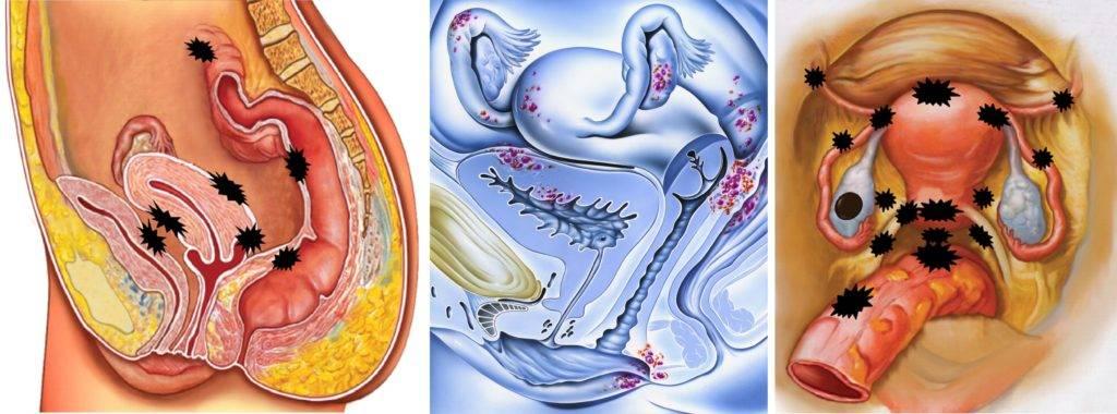 Аденомиоз матки и беременность: возможно ли забеременеть при этом заболевании?